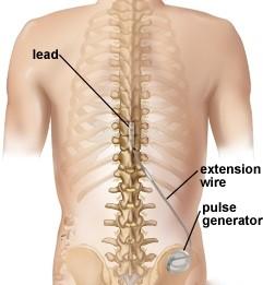 Neurostimulator