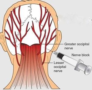 Occipital Nerve Blocks