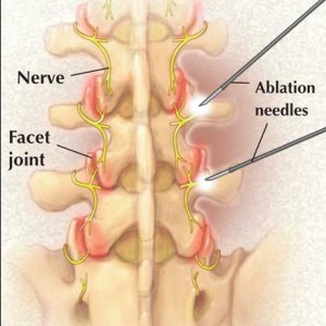 Radiofrequency Nerve Ablations